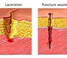 Puncture Wounds Scars